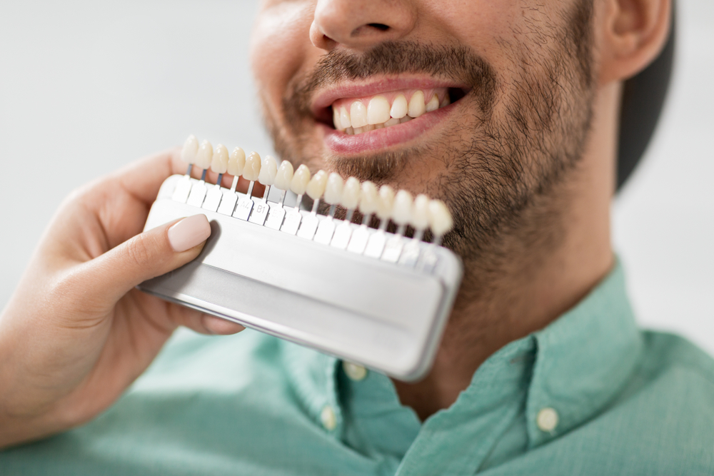 We match a man's teeth to our porcelain veneers color options.